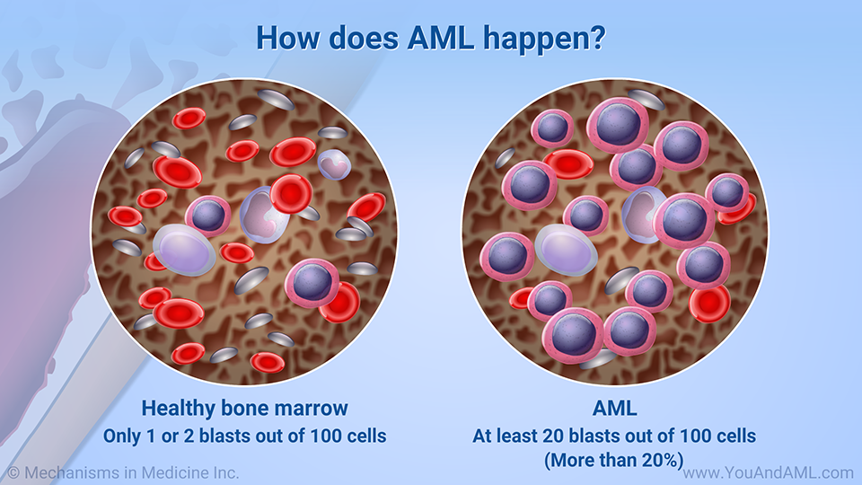 How does AML happen? (Continued)